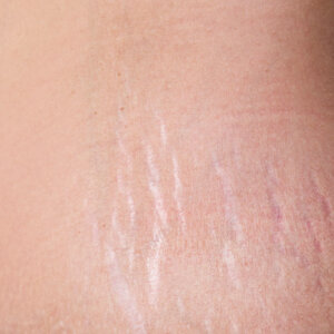 solution-clinic-laser-stretch marks