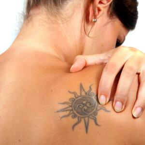 Tattoo verwijderen bij Solution Clinic